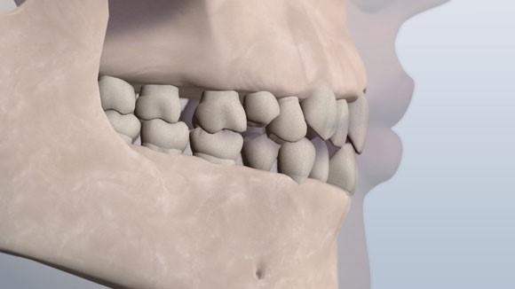 کمبود فضا و بهم فشردگی دندانها