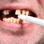تأثیر دخانیات بر سلامت دهان و دندان