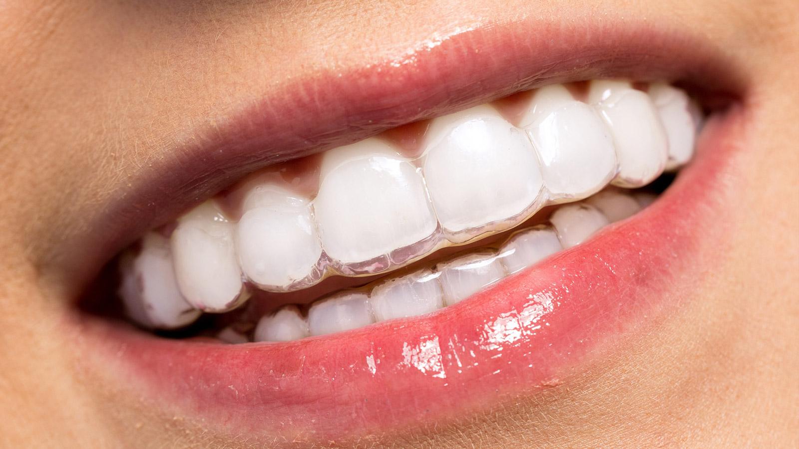 اهمیت رفع لکههای سفید بر روی دندان در ارتودنسی