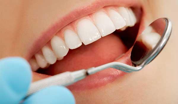 چه چیزی باعث زرد شدن دندان میشود علت زرد شدن دندان دائمی کودکان