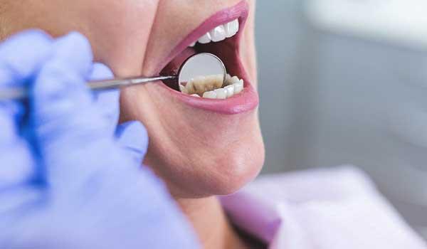درمان زردی دندان در منزل علت زردی دندان در طب سنتی