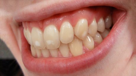 فلوروز دندان