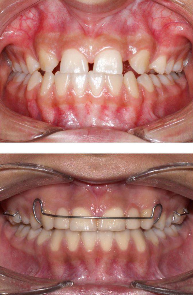 نمونه قبل و بعد ارتودنسی بستن فاصله بین دندان