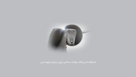 استفاده از براکت پشت دندانی برای درمان ارتودنسی