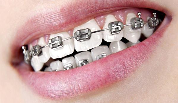 سیم کشی دندان چقدر طول میکشد