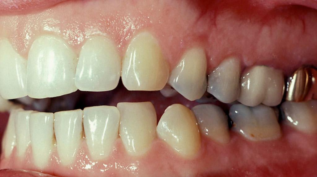 الگوی نامنظم بیرون زدن دندانها