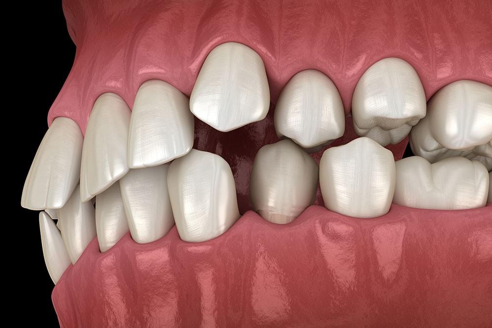 کجی دندانها و فک