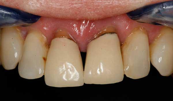 درمان پوسیدگی بین دو دندان جلو درمان سیاه شدن ریشه دندان علت سیاه شدن دندان از داخل