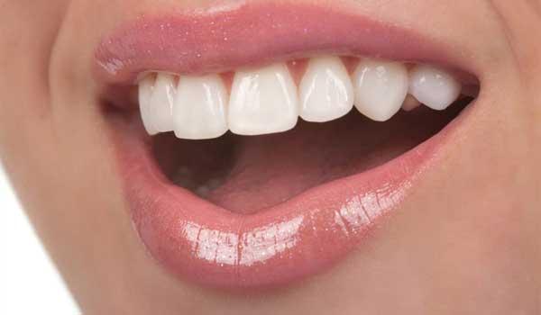 دلیل سیاه شدن ریشه دندان سیاهی بین دندان ها