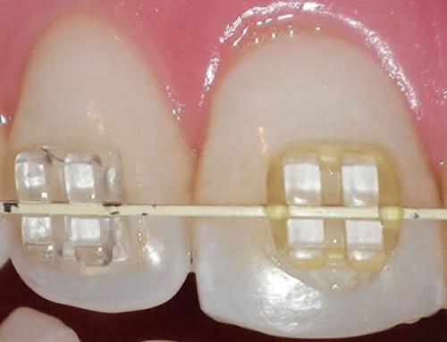 هزینه ارتودنسی سرامیکی همرنگ دندان