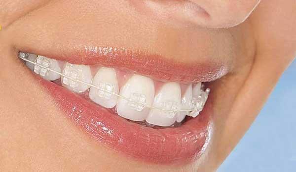 ارتودنسی بی رنگ یا کریستالی (شفاف)