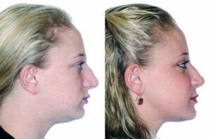 درمان انحراف فک بدون جراحی