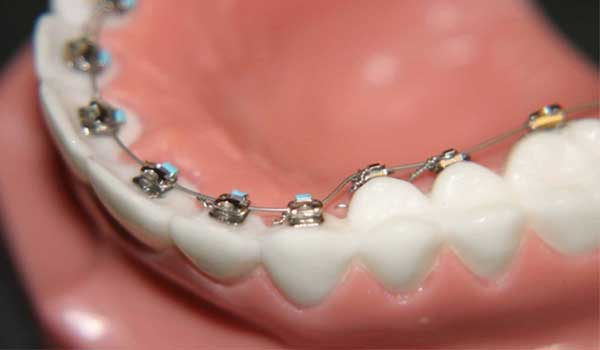 پلاک متحرک ارتودنسی چیست نحوه گذاشتن پلاک در دندان پلاک متحرک فک بالا قیمت پلاک دندان پلاک فانکشنال
