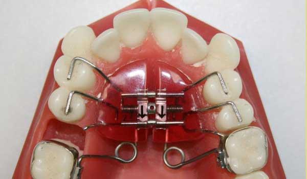پلاک متحرک پیچ دار نحوه گذاشتن پلاک در دندان پلاک نگهدارنده بعد از ارتودنسی