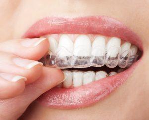 صاف کردن دندان با ارتودنسی نامرئی