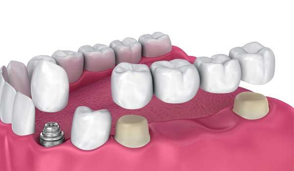 معجزه رویش مجدد دندان راهی برای رویش مجدد دندان رشد مجدد دندان ها