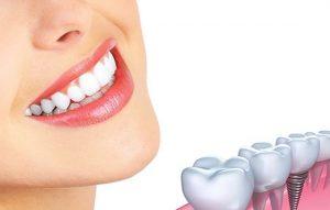 پیوند استخوان در ایمپلنت دندان (به انگلیسی: Bone graft implant)