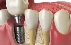 درد پیوند استخوان برای ایمپلنت دندان