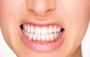 پیشگیری از اروژن دندان