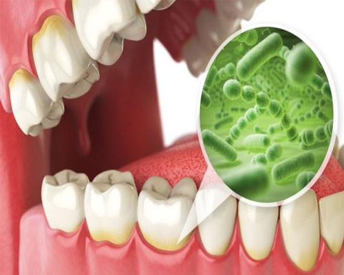 علت ایجاد پلاک دندان – نحوه تشکیل پلاک دندان