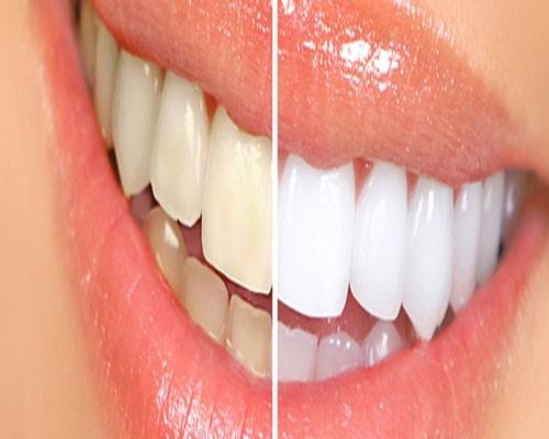 درمان پلاک دندان در طب سنتی