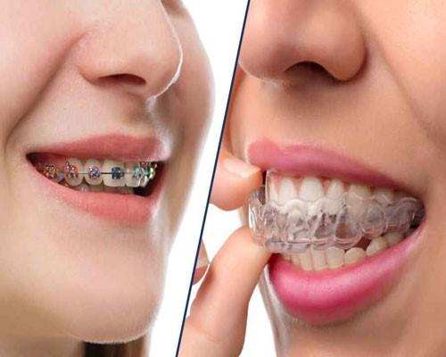پلاک دندان در ارتودنسی