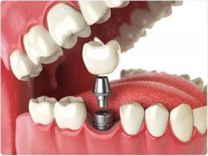پروتز دندان متحرک