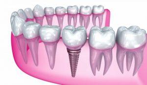 تعرفه پروتز دندان