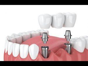 پروتز دندان (به انگلیسی: Dental Prosthesis)