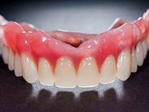 دندان مصنوعی (به انگلیسی: Dentures)