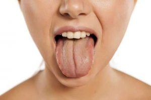 دلیل زردی زبان (به انگلیسی: Yellow Tongue Cause)