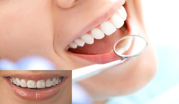 لمینت دندان بهتر است یا ارتودنسی