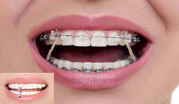 تفاوت ارتودنسی با لمینت دندان