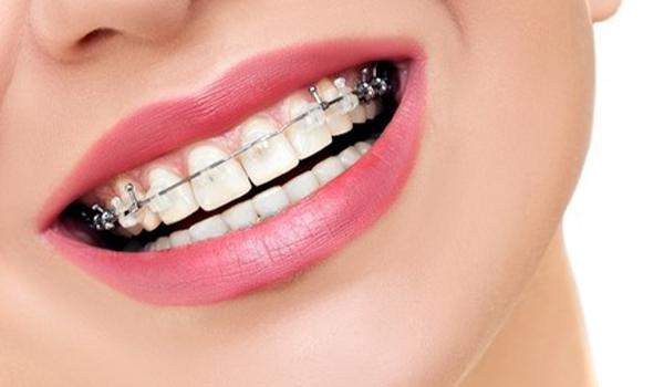چه دندانهایی باید ارتودنسی شوند؟