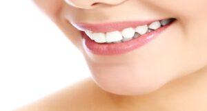 عمل جرم گیری دندان در ارتودنسی
