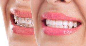 جرم گیری دندان حین ارتودنسی