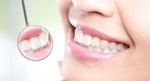 جرم گیری دندان و ارتودنسی
