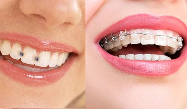 دلایل پوسیدگی دندان در طول درمان ارتودنسی