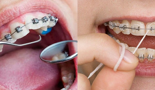 جلوگیری از پوسیدگی دندان در طول درمان ارتودنسی