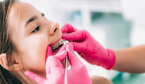 ارتودنسی دندان در کودکان چه ویژگیهایی دارد؟