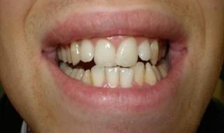 موقعیت اولیه دندان ها قبل از درمان ارتودنسی