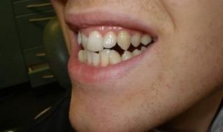 شدت بهم ریختگی دندانها