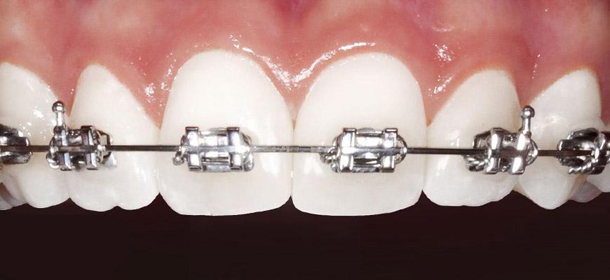 براکت و سیم آرچ که به دندان متصل شده اند