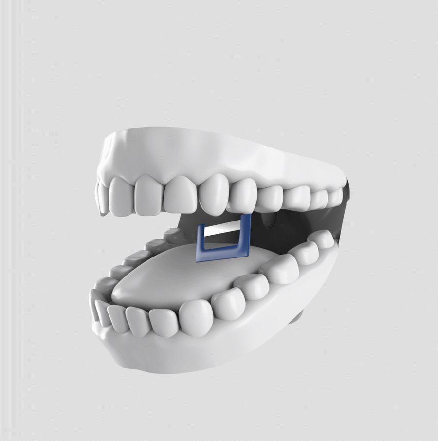 وسیع کردن کام و سایش مینای دندان