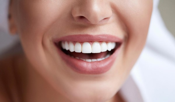 هزینه ارتودنسی تک دندان