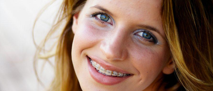 تفاوت هزینه انواع روش های ارتودنسی و سیم کشی دندان