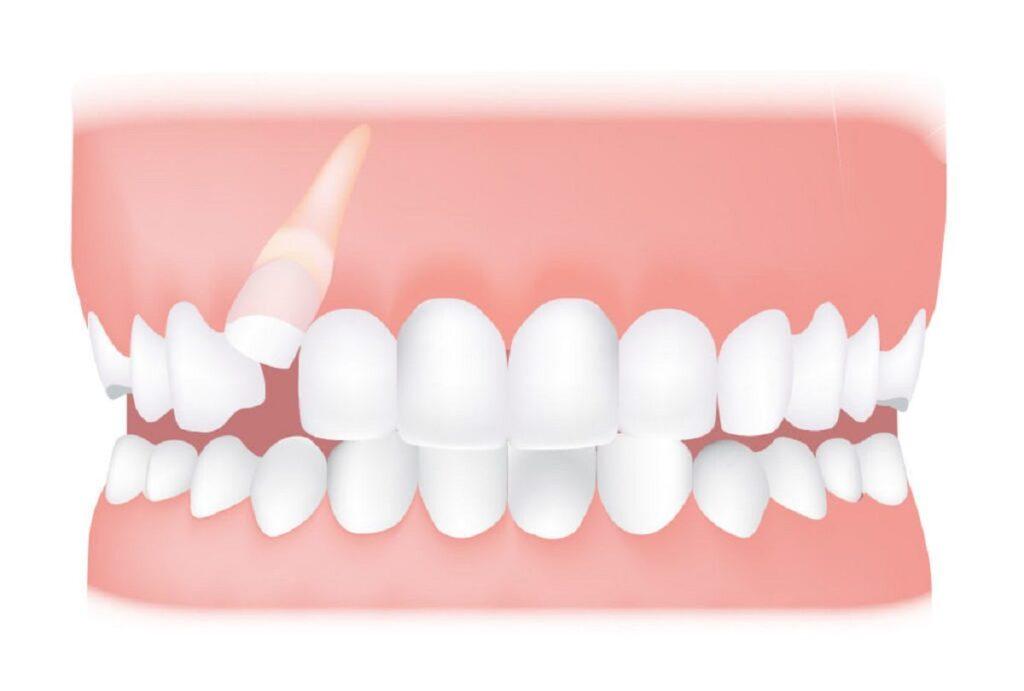 نحوه ارتودنسی دندان نیش