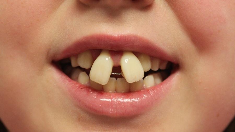 ارتودنسی دندان جلو آمده
