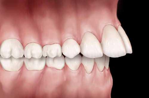 اورجت و ارتودنسی دندان جلو در فک بالا
