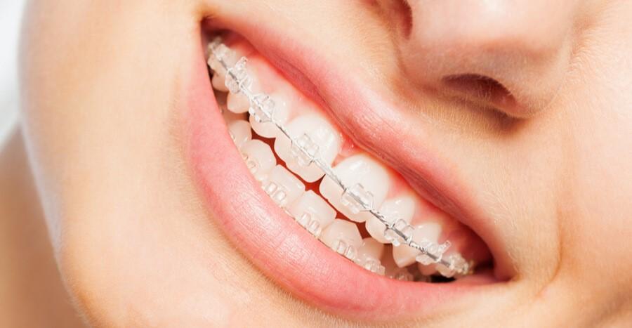 دلایل انجام ارتودنسی قبل از عمل بینی